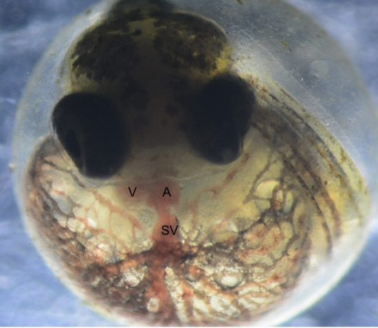 A comparison of a normally developed Atlantic killifish embryo (left) and a PCB-affected embryo. The fish on the right has a deformed heart. Killifish that have evolved tolerance to chemical exposure show limited signs of developmental defects.
